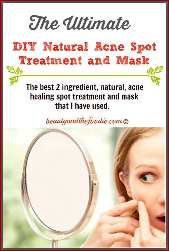 The Ultimate Natural Acne Ppot Treatment and Mask. beautyandthefoodie.com