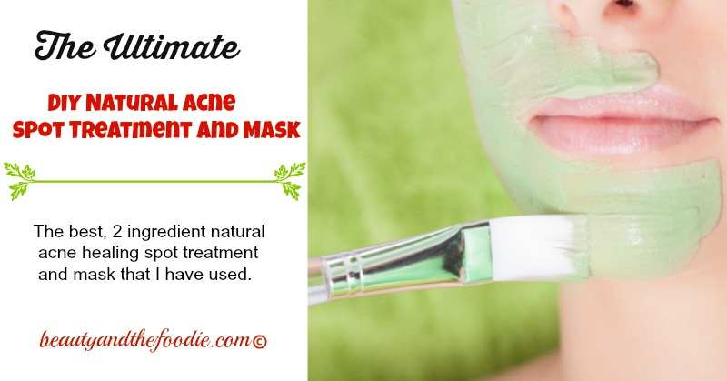 Ultimate Natural Acne Spot Treatment and Mask. beautyandthefoodie.com