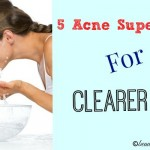 Five Acne Super Tips For Clearer Skin, #acnetips #clearskin